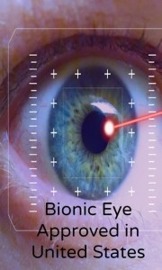 Bionic Eye Approved In United States