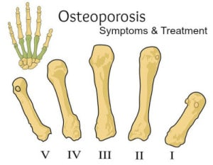 Signs, symptoms of osteoporosis.